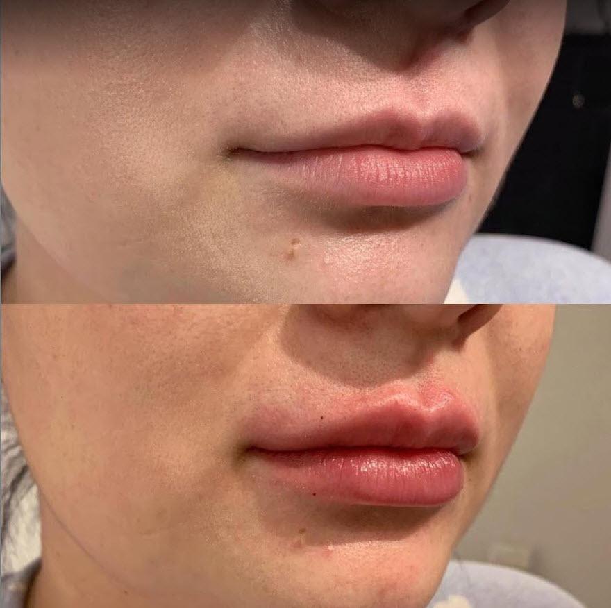 Calgary Lip filler injections medical spa 2.jpg